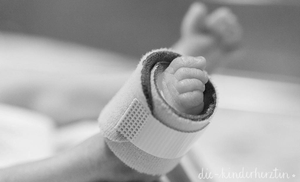 Der Kreißsaal: Fuß eines Frühgeborenen mit Sensor